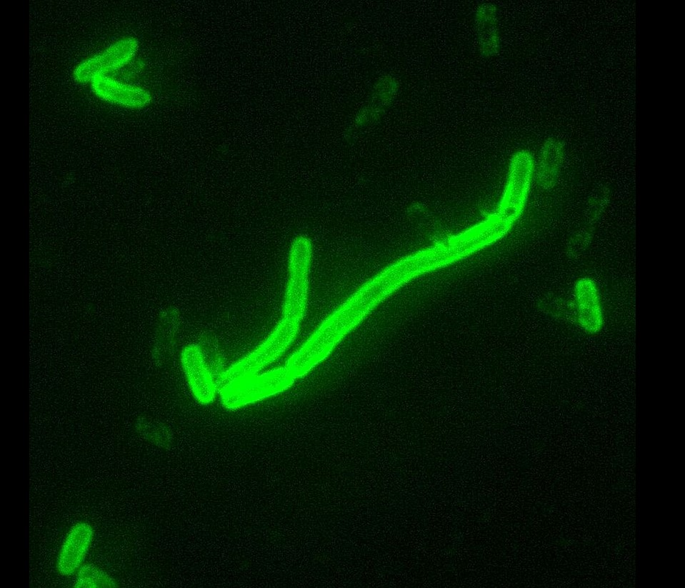 Yersinia pestis (flourescent microscopy) [source: wikipedia]